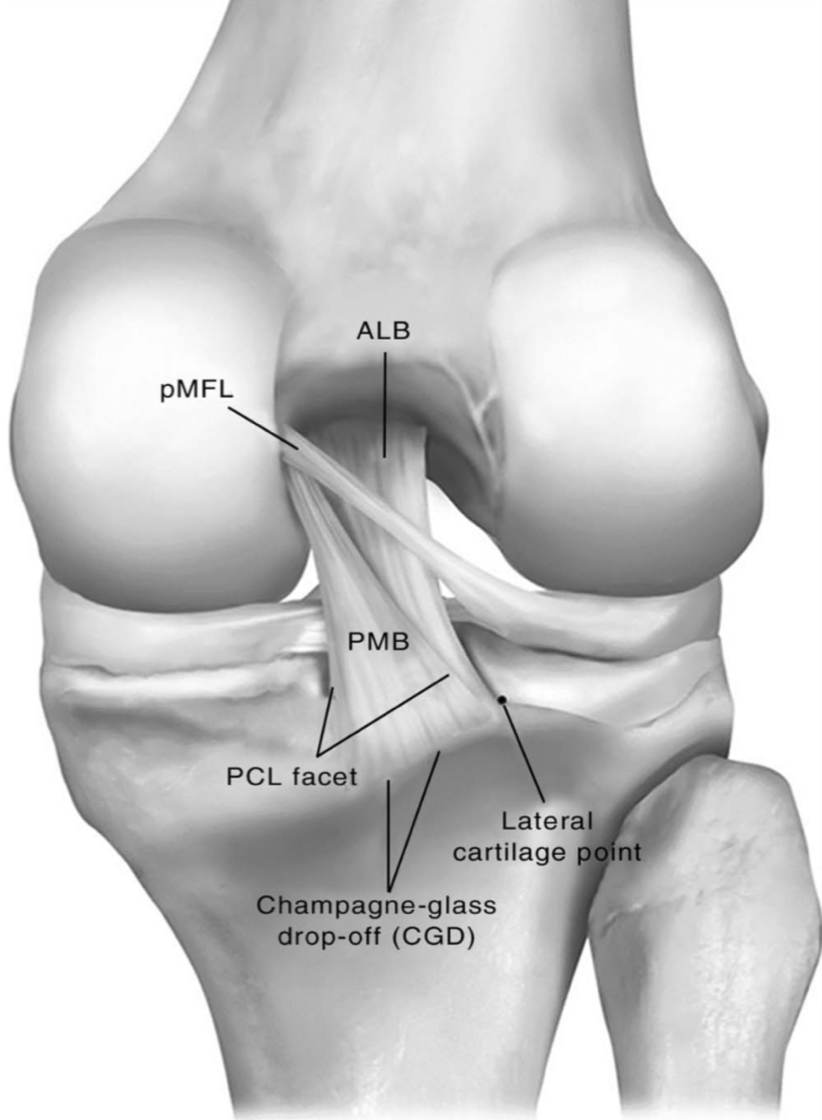 posterior cruciate ligament pcl injury Pcl strains & pcl tears - causes, symptoms, diagnosis and treatment options for  posterior cruciate ligament injuries arthoscopic knee surgery may be required.