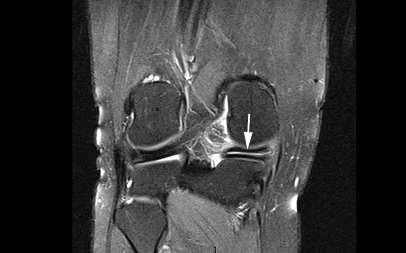 Degenerative Meniscal Tear Figure 4
