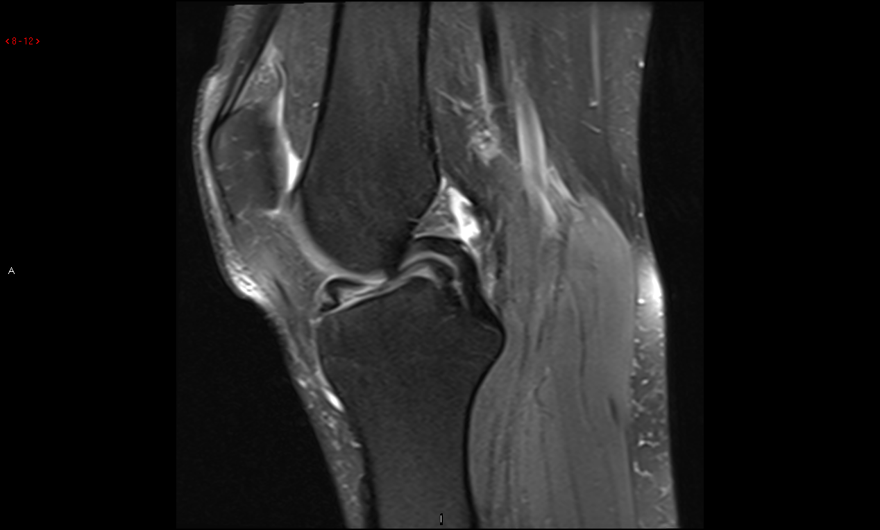 Traumatic Meniscal Tear Image 2