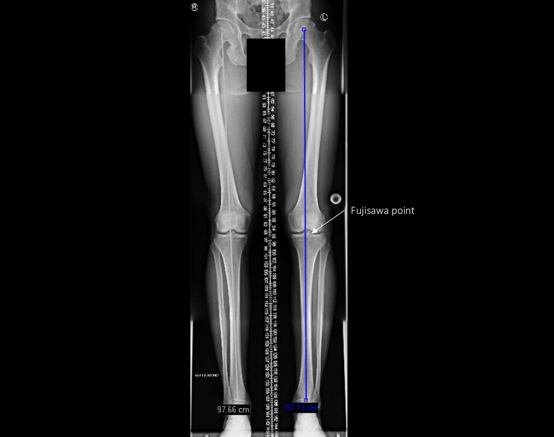 The Knee Resource Posterolateral Corner Injury
