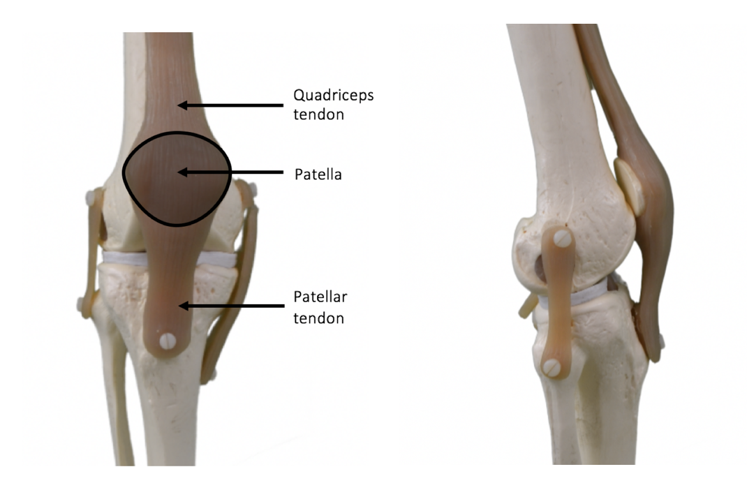 The Knee Resource Patellar Dislocation Subluxation
