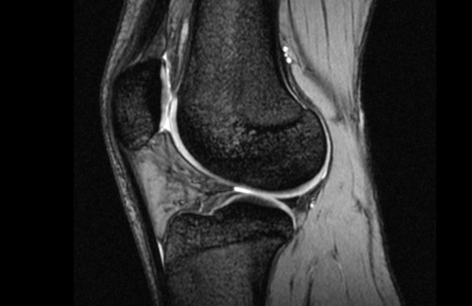 The Knee Resource   (ACL) Anterior Cruciate Ligament Rupture